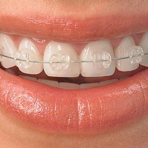 ortodoncia con éxito